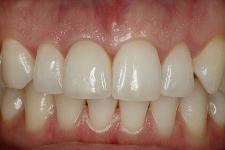 WHAT TO KNOW ABOUT DENTAL IMPLANT, THE BASICS